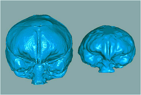 Reconstruccin del cerebro de Homo floresiensis (derecha) comparado con un humano actual. Vista frontal